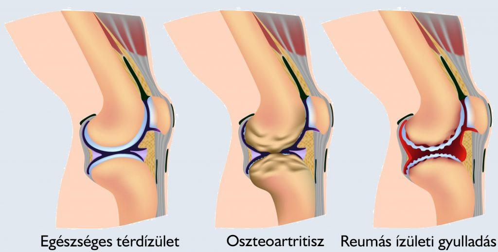 újdonság a csípő coxarthrosis kezelésében