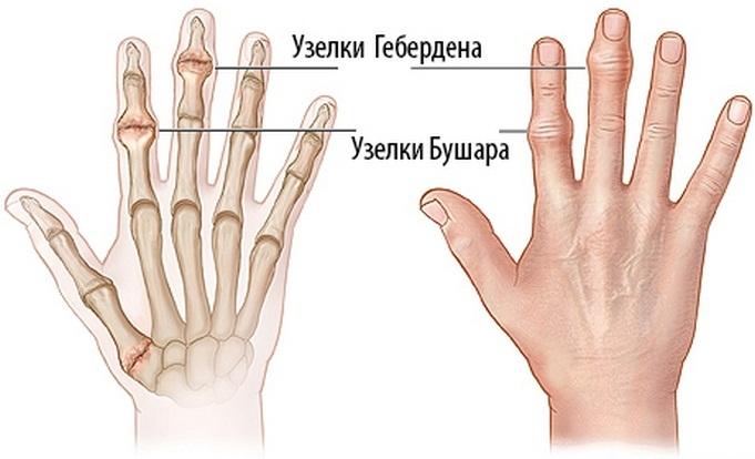Mi a teendő, ha az ujjak ízületei fájnak: az okok és a kezelés