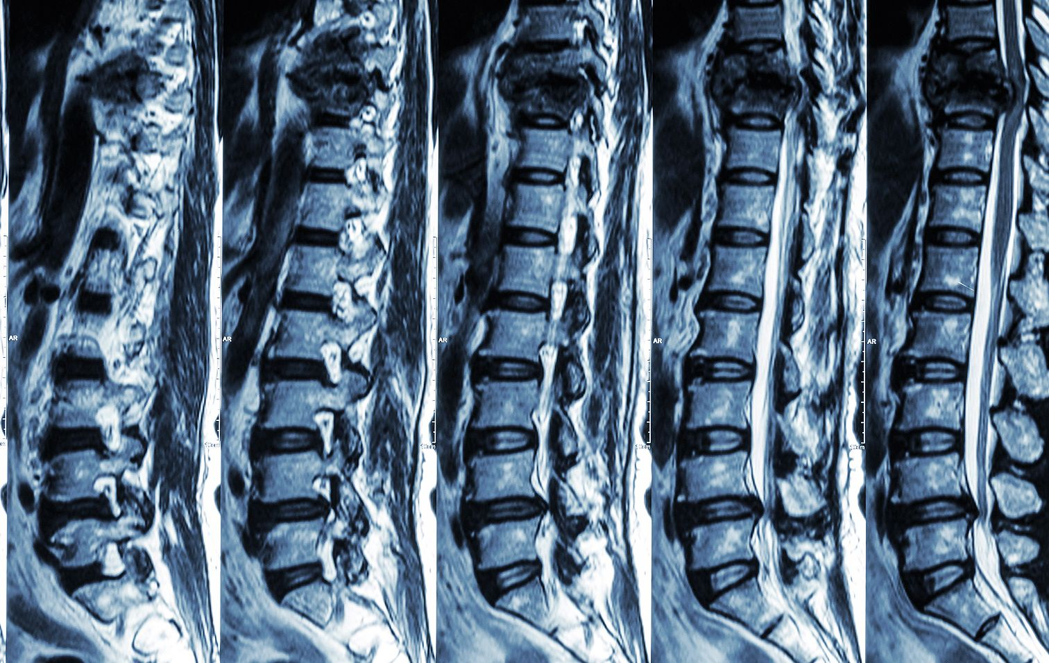 Gerinc artritisz - leírás és javasolt gyógykezelés