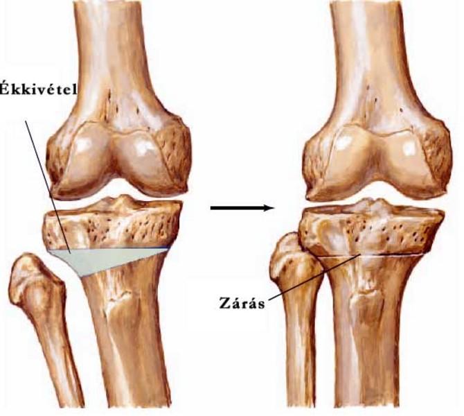 a térd belső meniszkuszának helyreállítása fájdalom csípőízület artrózisával