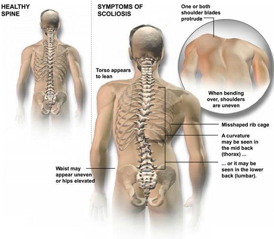 a sacrum ízületének gyulladása vállat és fájdalmat okoz a vállízületben