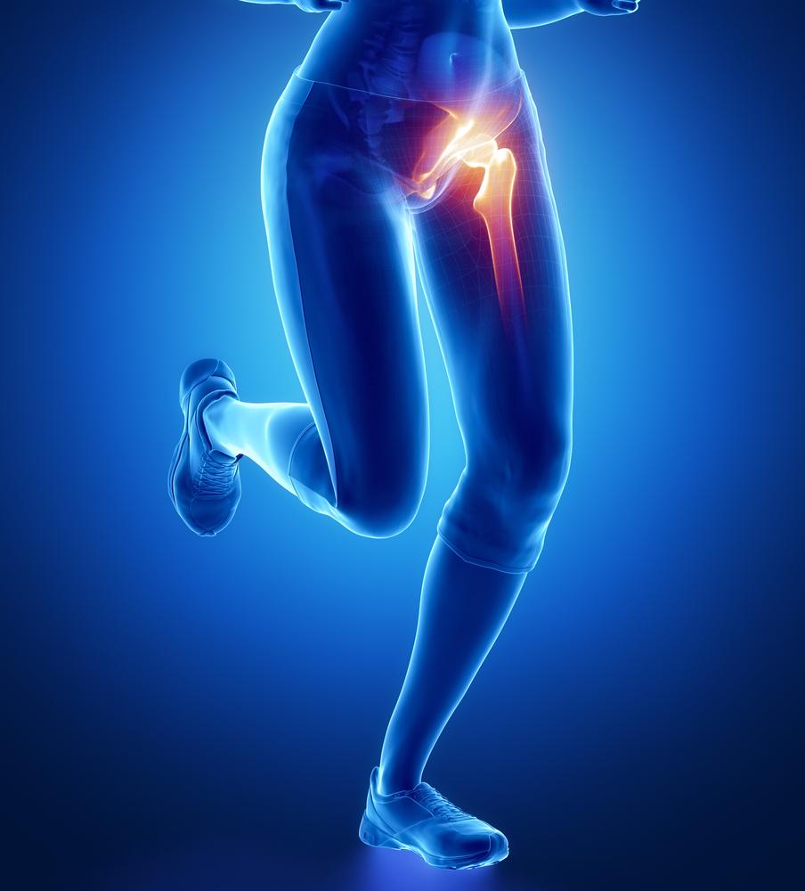 csípőízület trochanterikus bursitisz fájdalomcsillapítók térdfájdalmakhoz