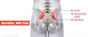 sacrum és csípőízület fájdalma