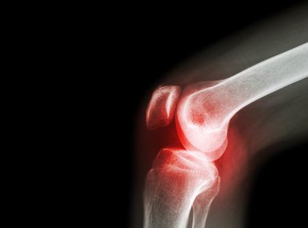 deformáló artrózis térdkezelés