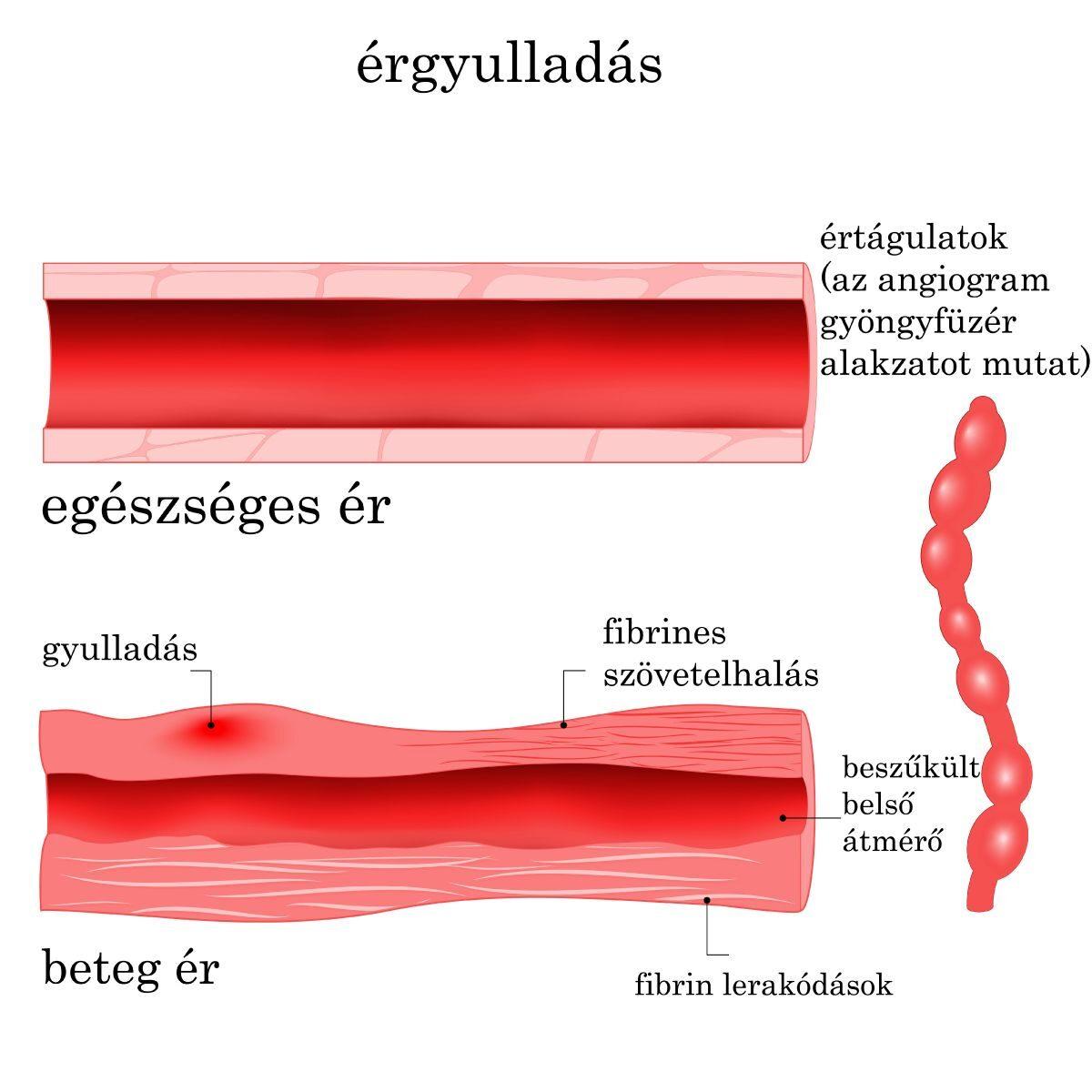 a kötőszöveti vaszkulitisz szisztémás betegségei ízületi betegség paradicsom