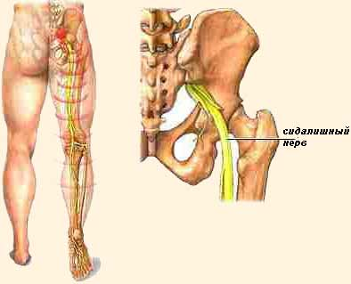 ízületi kezelés rézhuzal gerinc és ízületek kobaltcsíra betegségei