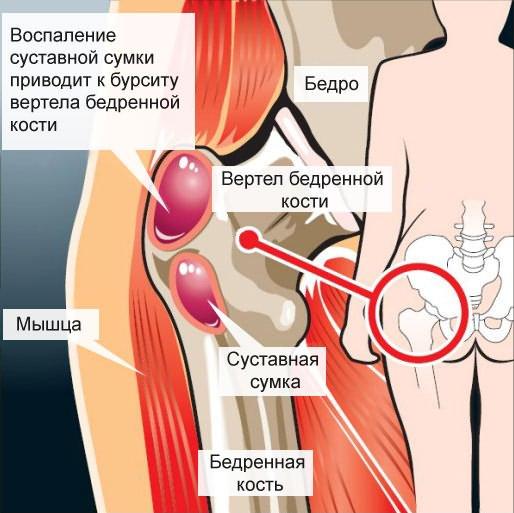 akut fájdalom a térdízületben artrózissal az artrózis hagyományos kezelése