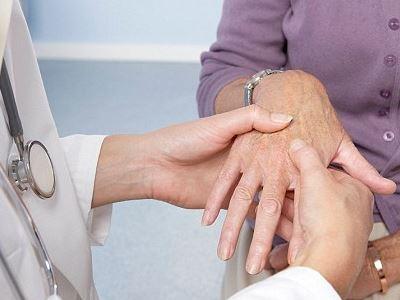 ízületi kiürülés rheumatoid arthritisben