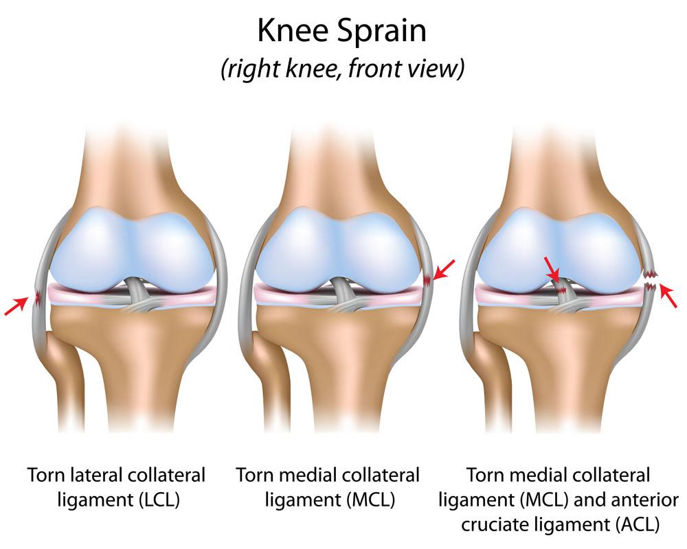 a deformáló artrózis őssejt kezelése lábfájdalom a bokaízületben