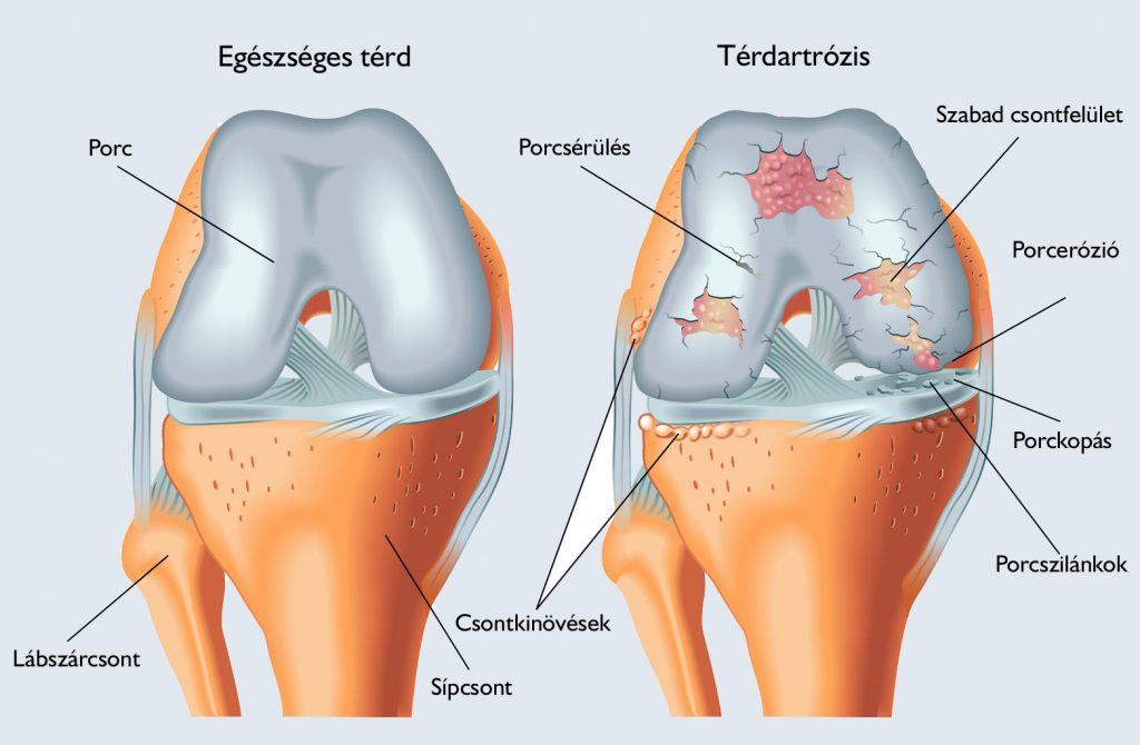 kenőcsék térd ízületi sérülésekhez lábujjízületi tünetek és kezelés