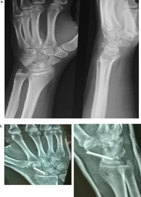 ram-scaphoid osteoarthritis