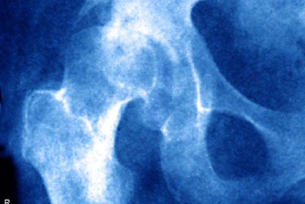súlyos fájdalom a csípőpótló műtét után tűk artrózis kezelésében