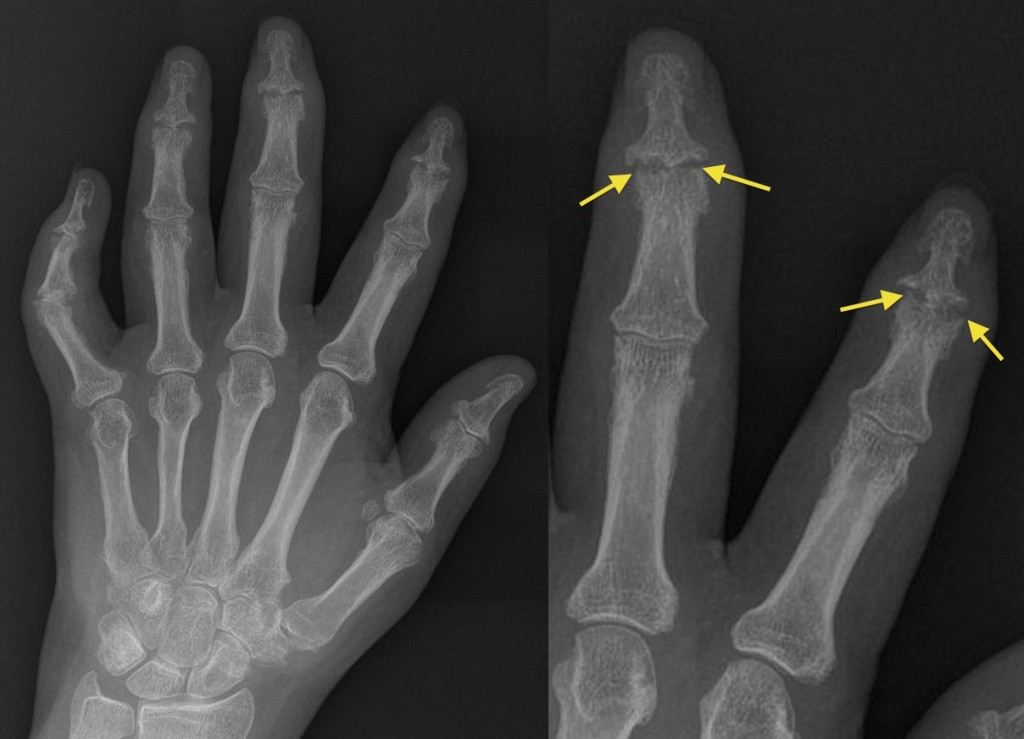 arthritis psoriatica radiology