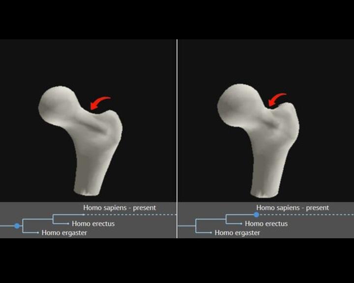kattintson a csípőízületi fájdalomra csontritkulás kezelésére szolgáló gyógyszerek a legbiztonságosabb 2020