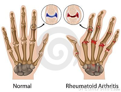 Ízületi gyulladás tünetei | Arthritis okai és kezelése