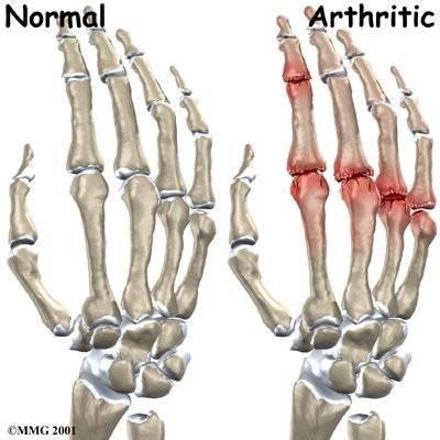 a lábízületek egyedül fájnak gyógynövények a lábak ízületeinek fájdalmához
