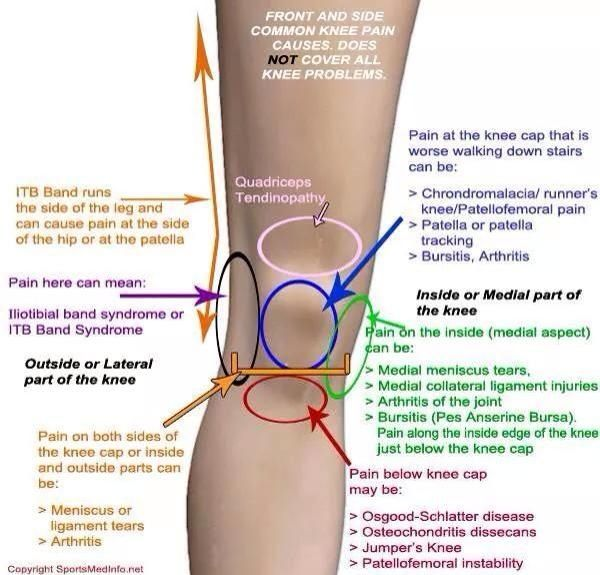 carpal bursitis kezelés