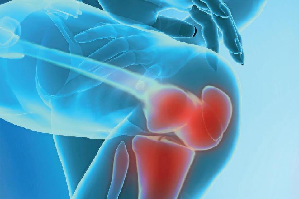 térdízület polyarthritis gyógyszerei ízületi fájdalom a lábak húzódását okozza