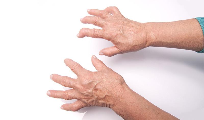 ízületi ízületi rák az ízületek reumatoid artritiszének gyógyítása