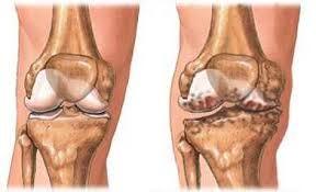 mennyi ideig kezelik az artrózist ízületi fájdalom fiatal
