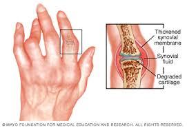 fáj a gyűrűs lábujjízület