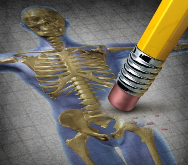 tablettákban előállított készítmények csontritkulás kezelésére a térd szinovitisz története