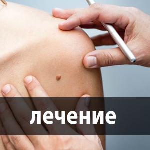 a sacroiliac ízülete fáj