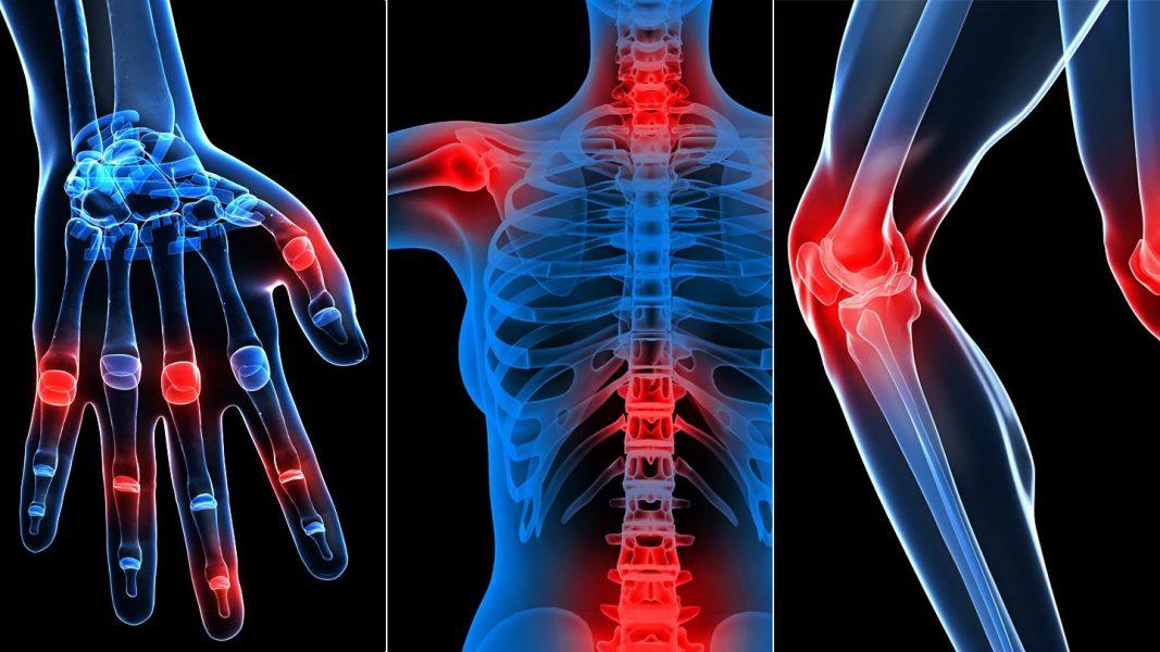 orbáncfű ízületi fájdalmak kezelésére 39 hét fáj az ízületek