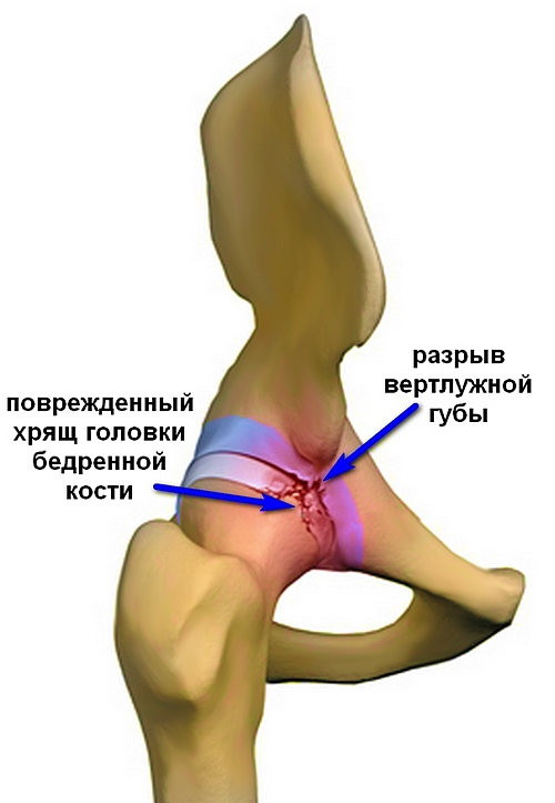 a térd artrózisa 2 fok