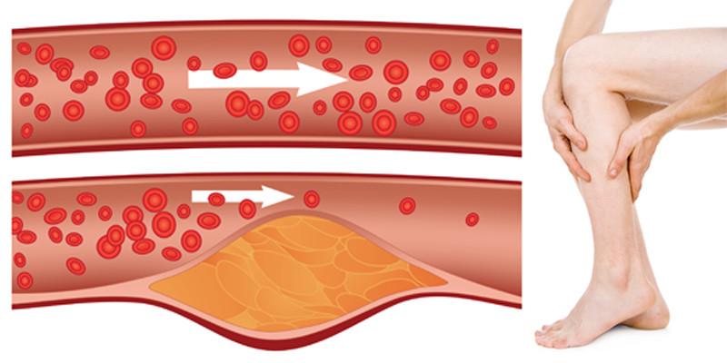 ibuprofen injekciók ízületi fájdalmak kezelésére