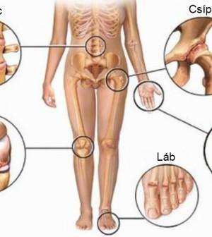 zab főzet ízületi fájdalmak kezelésére