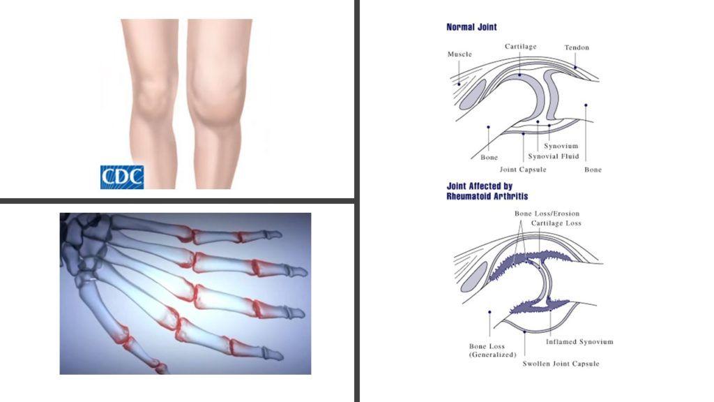 rheumatoid arthritis betegség kezelésére a térdízület nem hajlítja a kezelést