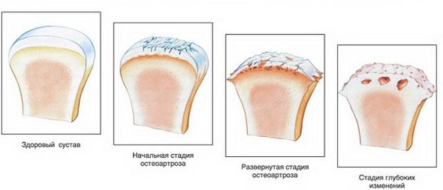 fájdalmak lehetnek az ízületek hipotermia következtében