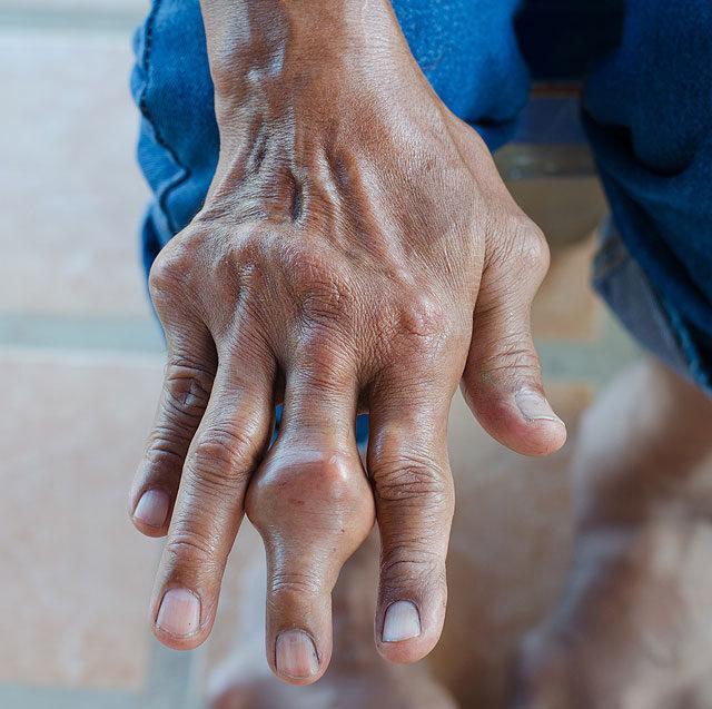 az ujjak ízületi gyulladása a karon