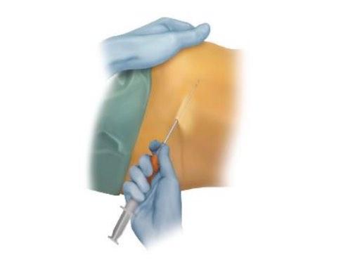 klinika és az artrózis kezelése