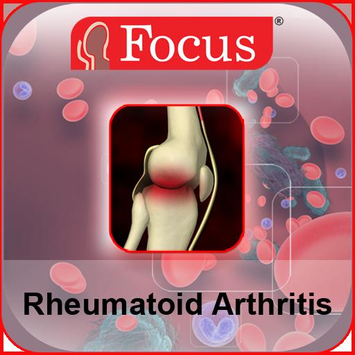 az ízületek rheumatoid arthritis kezelése ízületi fájdalom a jobb oldalon