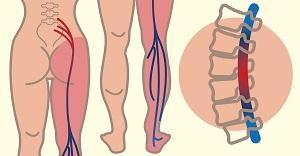 futó artrózis hogyan lehet kezelni fájdalom ízületek duzzadt kezek