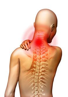 Cervicalis osteochondrosis: a betegség lényege, jellemző tünetek és kezelés - Kyphosis July