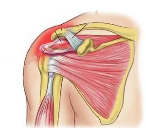 közös kezelés ortopéd ízületi fájdalom férgekkel