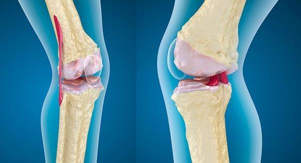 hidegvíz artrózis kezelés a legerősebb hézag