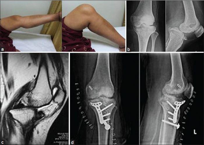 a térd artrózisának stádiuma