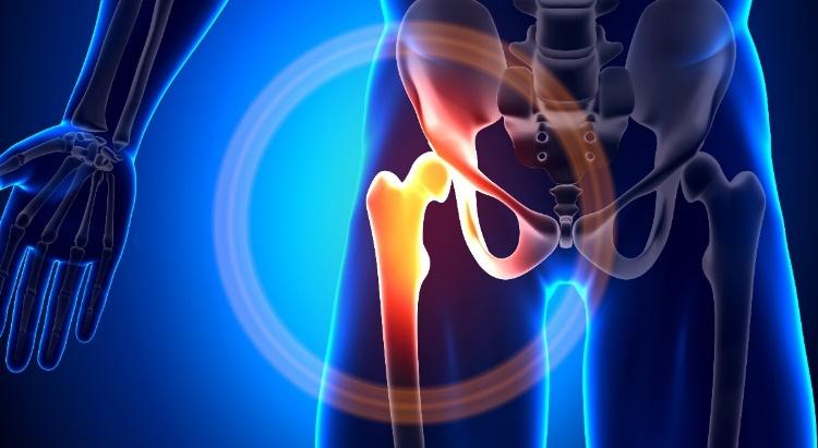 a térd artrózisával járó fájdalomtól subfebrile ízületi fájdalom