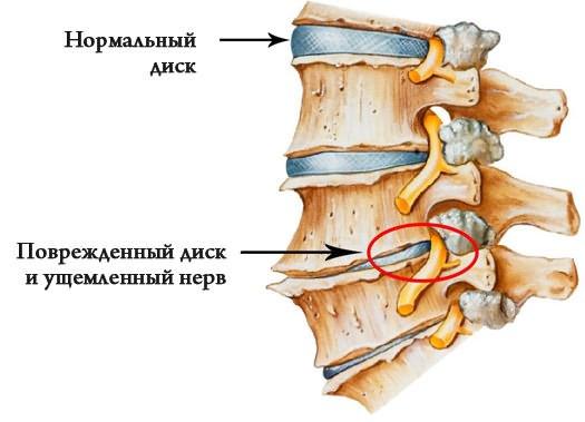 a bokaízület megsemmisítése az artrózis utolsó stádiuma