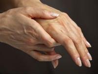 Az ízületek reumája - jelek, okok és kezelés
