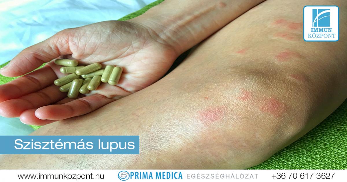 ízületi fájdalom az sle-ben fenyőmagok ízületi betegség esetén