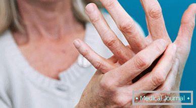 a hüvelykujj kezelés traumatikus ízületi gyulladása