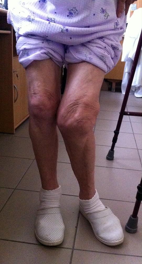 csontritkulásos kenőcs, amely jobb ízületi fájdalom a vállban és a csuklóban
