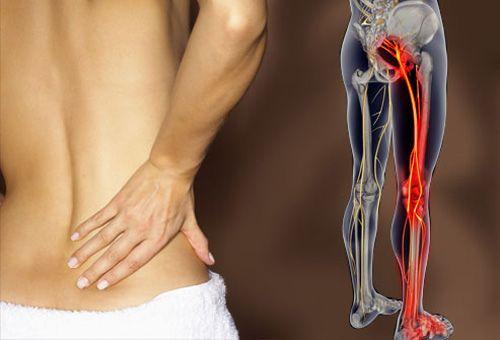 Fibromyalgia - Súlypont Ízületklinika