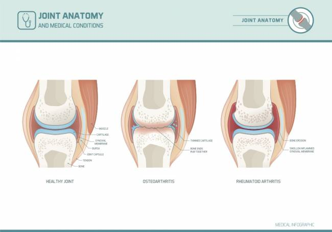 formatív osteoarthritis kezelése