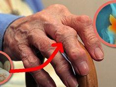 a tabletták ízületei fájnak a bal kar csukló fájdalma